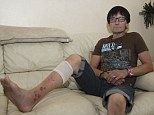 Poison: Keith Cooper from Howdon, Tyne & Wear, shows his injured leg as he rests at home